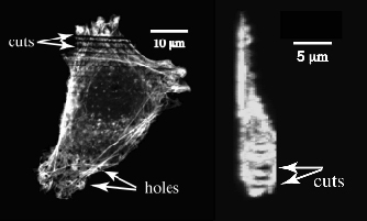 Central slice (left) and side view (right) of a cell photodisrupted by 100-fs laser pulses seen by fluorescence confocal microscopy.